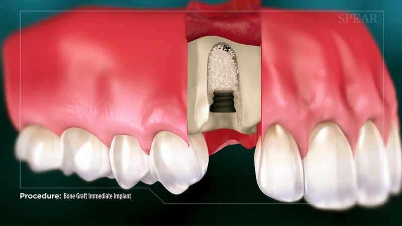 Bone Graft with Immediate Implant Placement