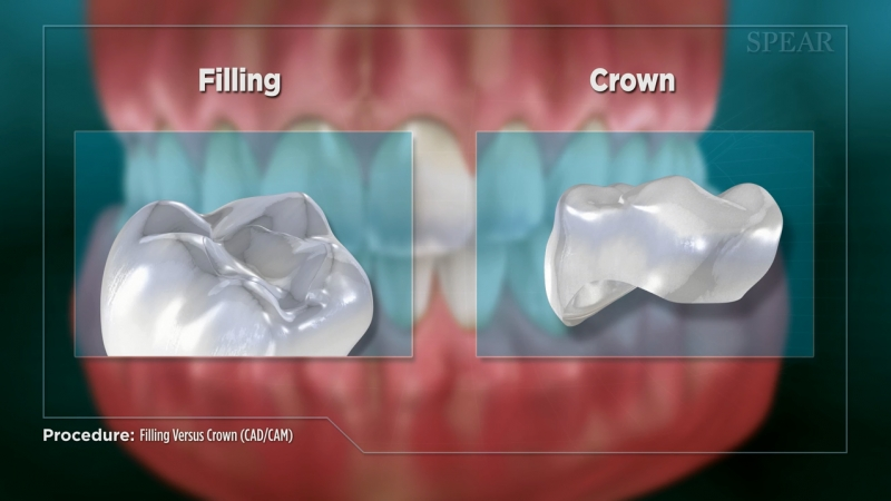 Filling Versus Crown (CAD/CAM)