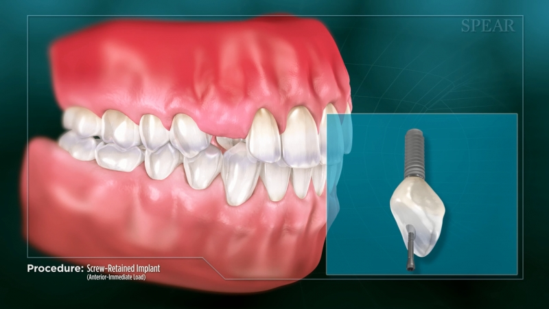 Screw-Retained Implant (Anterior- Immediate Load)