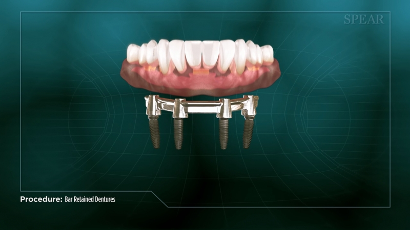 Bar Retained Overdenture