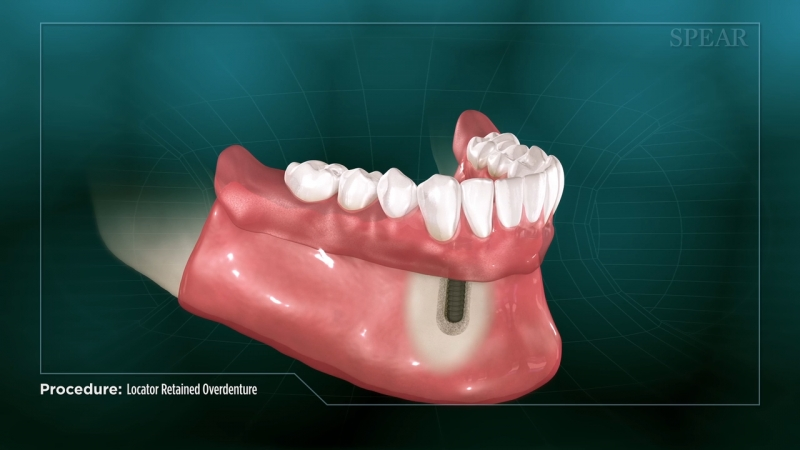 Locator Retained Overdenture