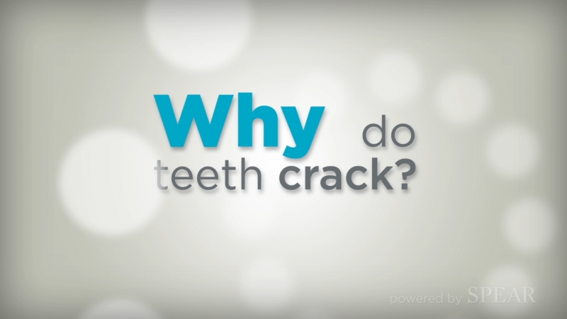 Cracked Teeth
