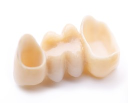 Dental Crowns and Dental Prosthetics